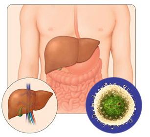 Софосбувир в Москве – эффективные стандарты борьбы с развитием гепатита C