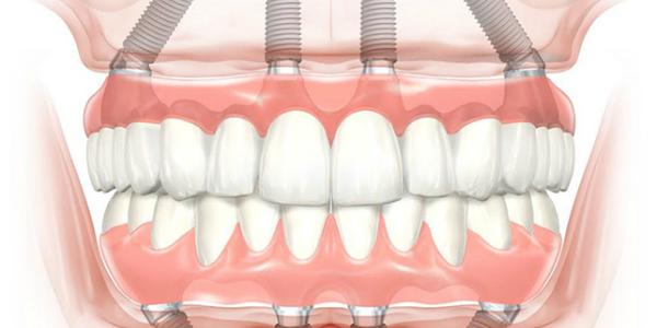 Здоровые зубы ив се что для этого нужно!